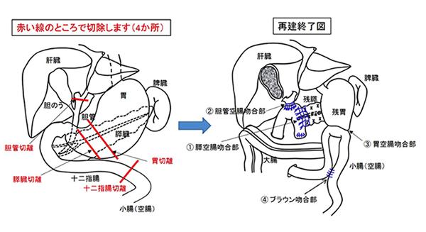 膵頭十二指腸切除術