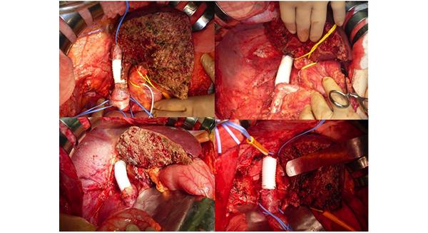 下大静脈合併切除・人工血管再建手術をされた方々
