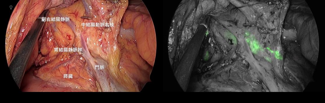 緑色蛍光信号:中結腸動脈右枝に沿ったリンパ流