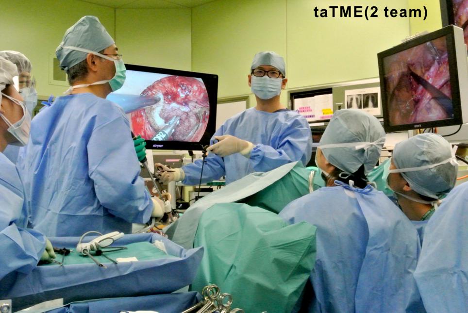 直腸癌のtaTME手術